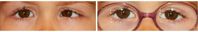 Endotropia-constante-ojo-izquierdo-corregida-con-gafas
