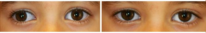 Exotropia-intermitente-ojo-derecho