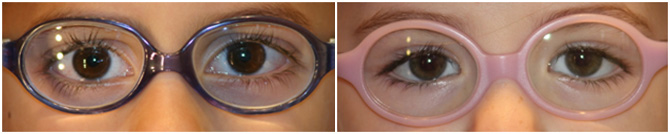 gafas-peques2