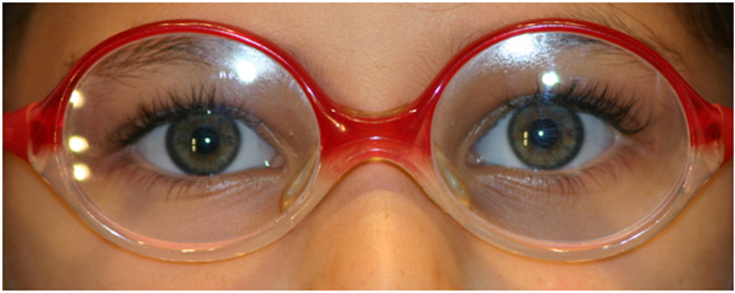 gafas-peques4