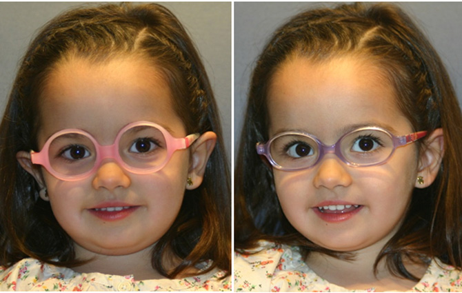 gafas-peques6