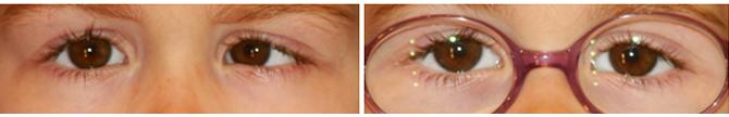 Estrabismo-convergente-constante-ojo-izquierdo-corregido-con-gafas