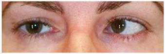 Estrabismo-convergente-ojo-izquierdo-adultos