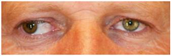 Estrabismo-divergente-ojo-derecho-adultos
