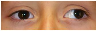 Estrabismo-divergente-ojo-izquierdo