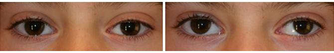 Exotropia-intermitente-ojo-izquierdo