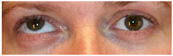 Hipertropia-ojo-derecho-adultos