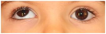 Hipertropia-ojo-derecho