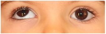Hipertropia-ojo-derecho2