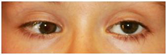 Hipotropia-ojo-derecho