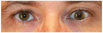 Hipotropia-ojo-izquierdo-adultos