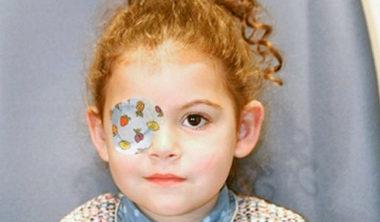 Tratamientos oftalmología y estrabismo