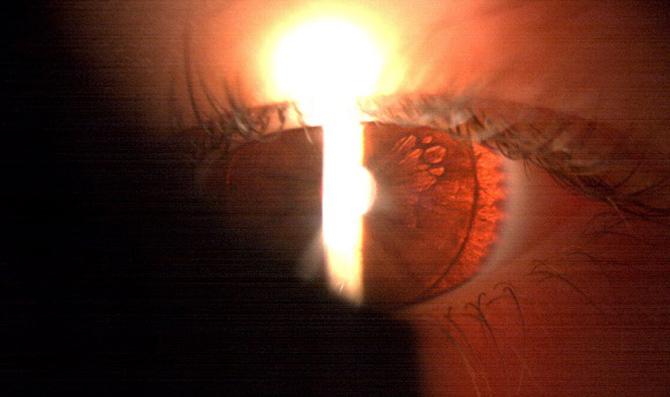 ojo-vago