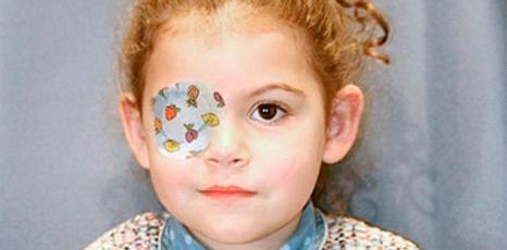 Ambiopía u ojo vago