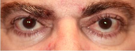 Testimonio realizado por paciente intervenido de estrabismo con diplopia