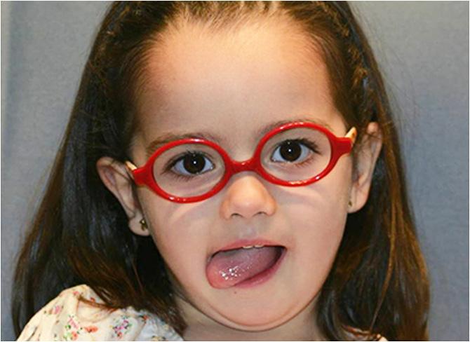 gafas-peques