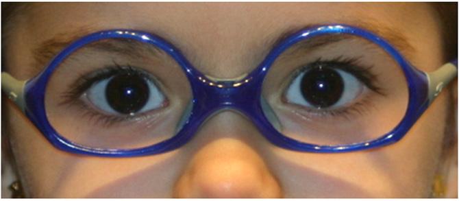 gafas-peques3